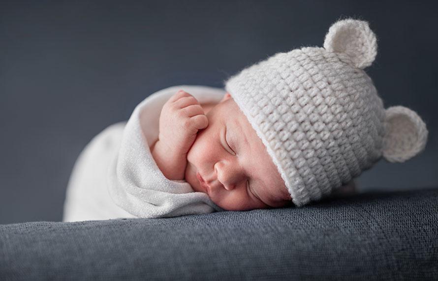 Hernias Umbilicales en recién nacidos